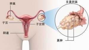 如何促进排卵?